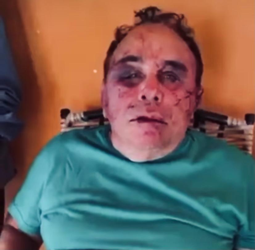 Ex-prefeito e familiares espancados em assalto